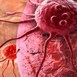 Zmniejsz ryzyko nowotworów